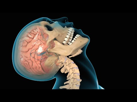 Cranioencephalic Trauma
