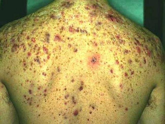 Dermatophobia